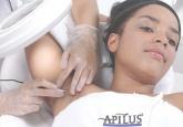 Elettrodepilazione Apilus